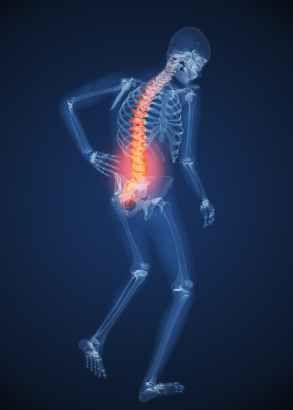 Dolor Crónico de Espalda